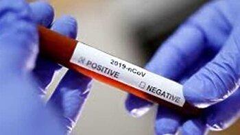مصر تتخطى الأربعين الف مصاب بفيروس كورونا ورقم صادم فى حالات الوفاة